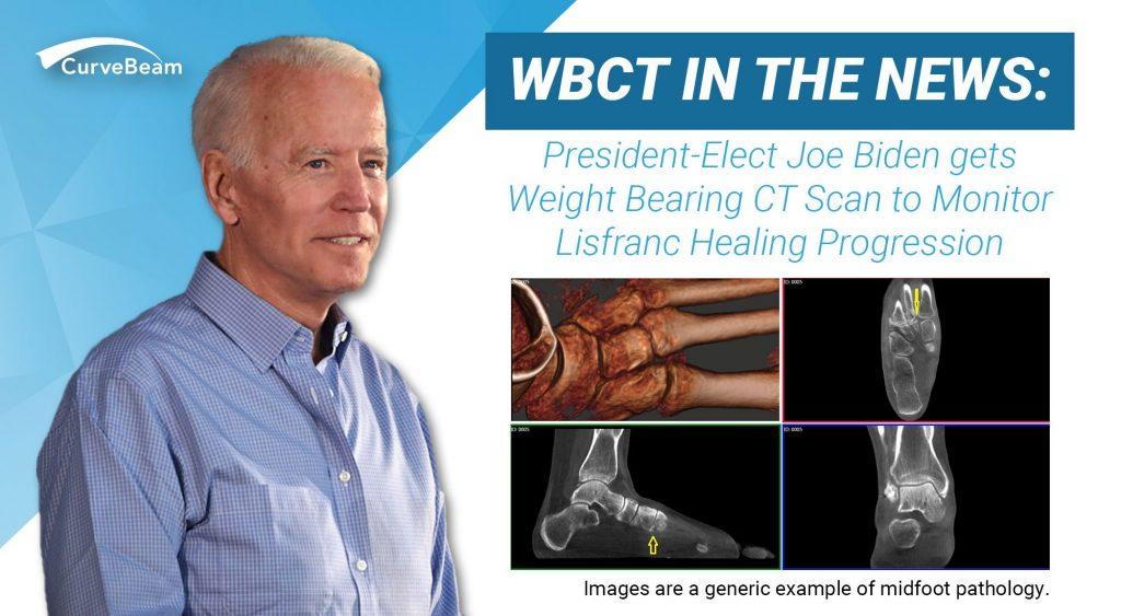 Why President Elect Joe Biden Chose to Take a Weight Bearing CT Scan